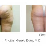 Tratament eliminare celulita fese